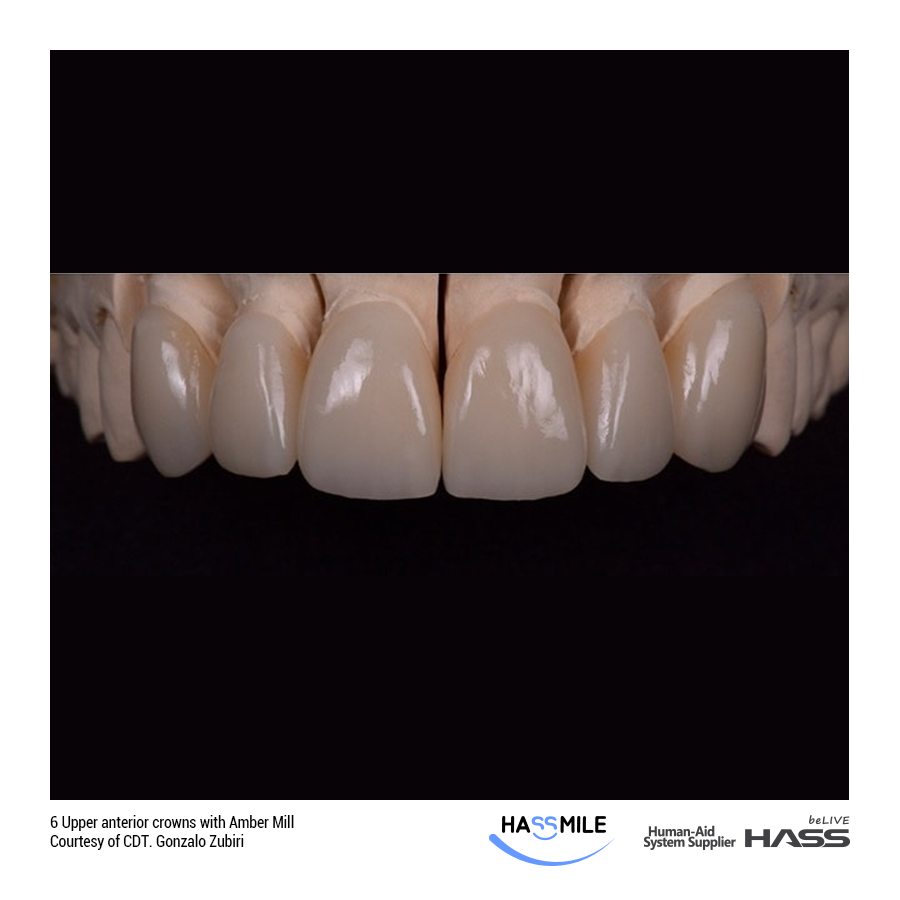 6 Upper anterior crowns with Amber Mill