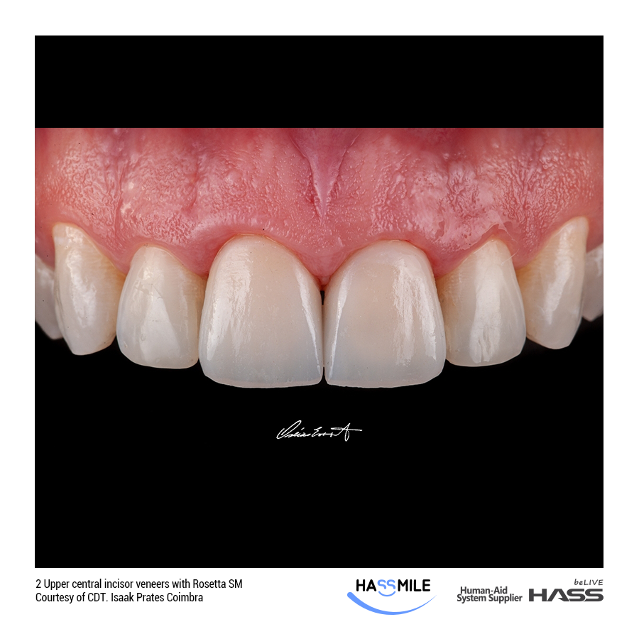 2 Upper central incisor veneers with Rosetta SM(LT/HT)
