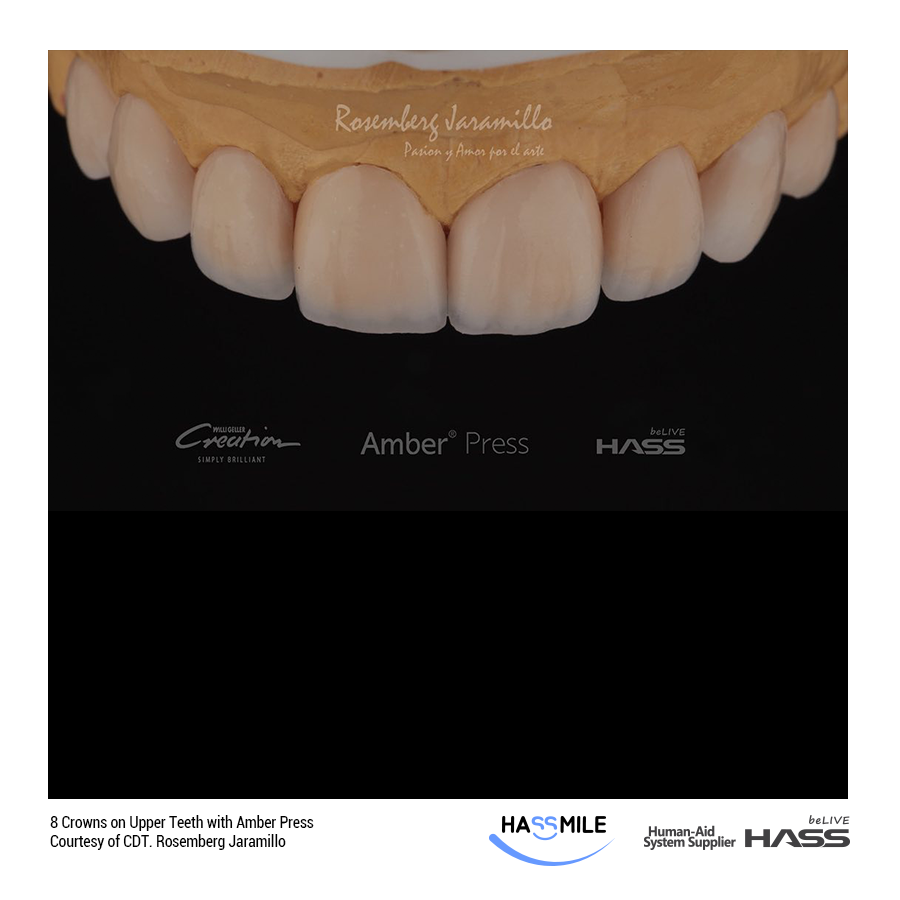 8 Crowns on Upper Teeth with Amber Press