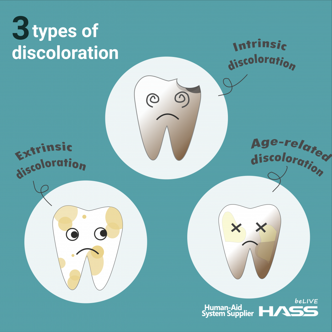 dental news tooth discoloration